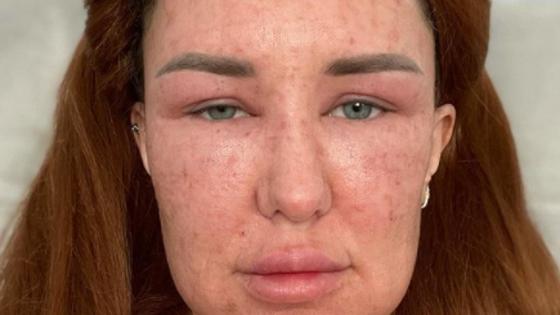 «Не могу открыть глаза»: блогерша показала результат популярной процедуры красоты